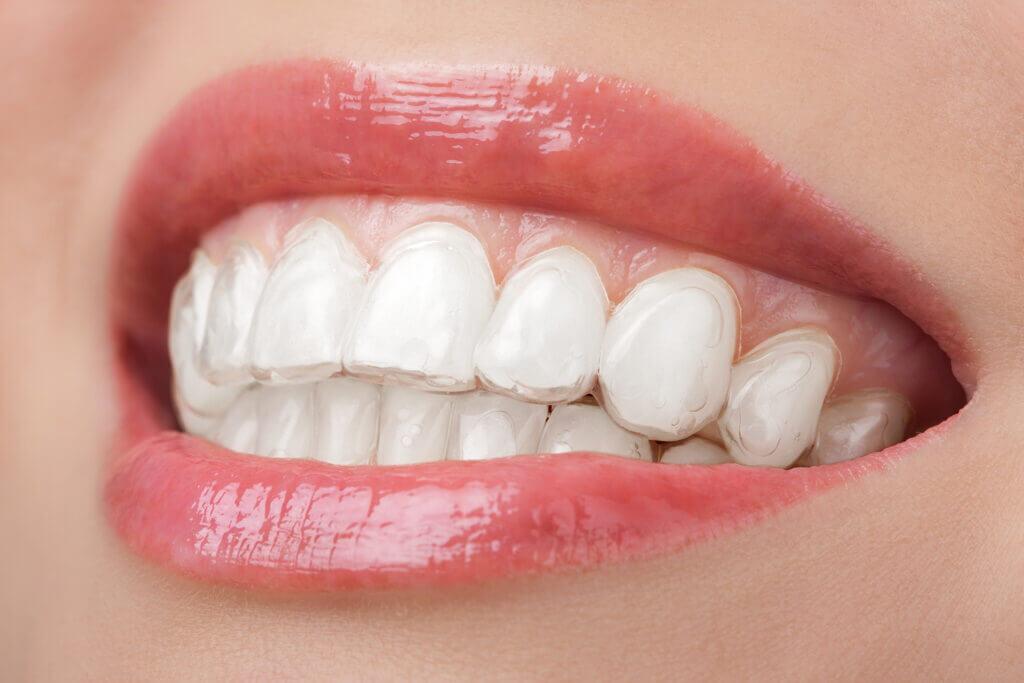คลินิก-ทันตกรรม-ดิไอวรี่-จัดฟัน-แบบใส-ยิ้ม