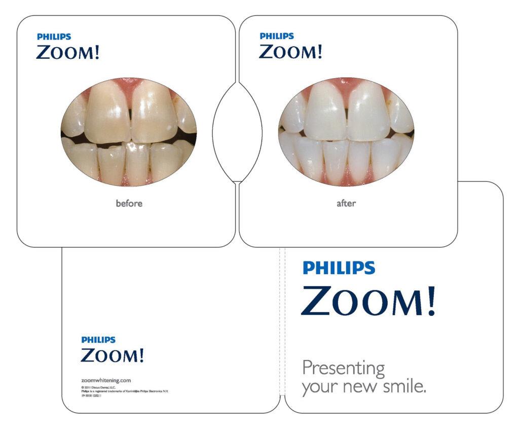 คลินิก-ทันตกรรม-ดิไอวรี่-ฟอกสีฟัน-ฟอกฟันขาว-Zoom-ตัวอย่าง