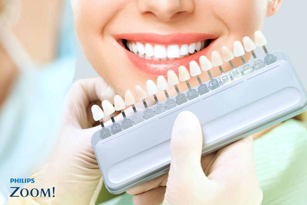 คลินิก-ทันตกรรม-ดิไอวรี่-ฟอกสีฟัน-ฟอกฟันขาว-Zoom