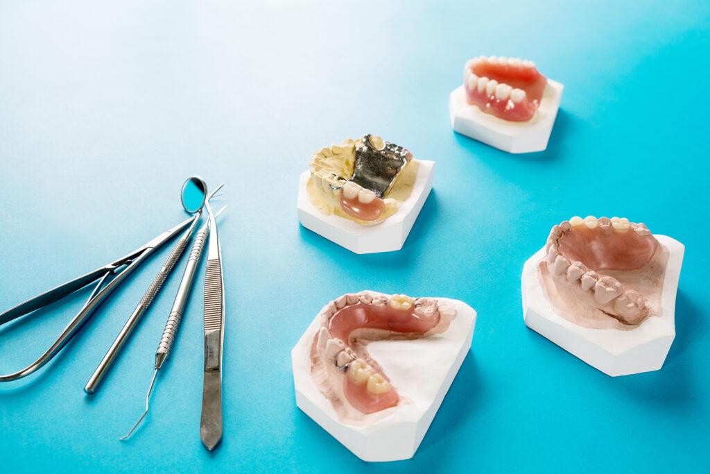 คลินิก-ทันตกรรม-ดิไอวรี่-ฟันปลอมถอดได้-ประเภท