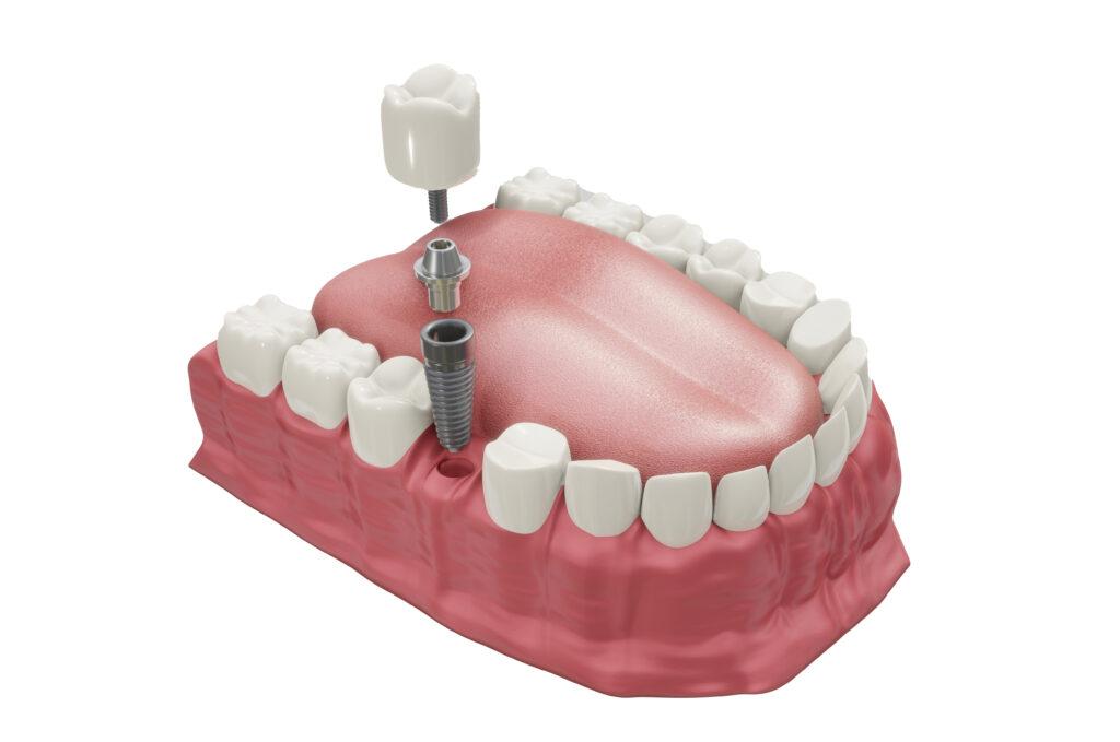 คลินิก-ทันตกรรม-ดิไอวรี่-รากฟันเทียม-การปัก