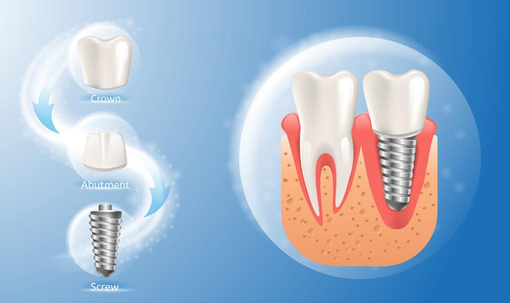 คลินิก-ทันตกรรม-ดิไอวรี่-รากฟันเทียม-ส่วนประกอบ