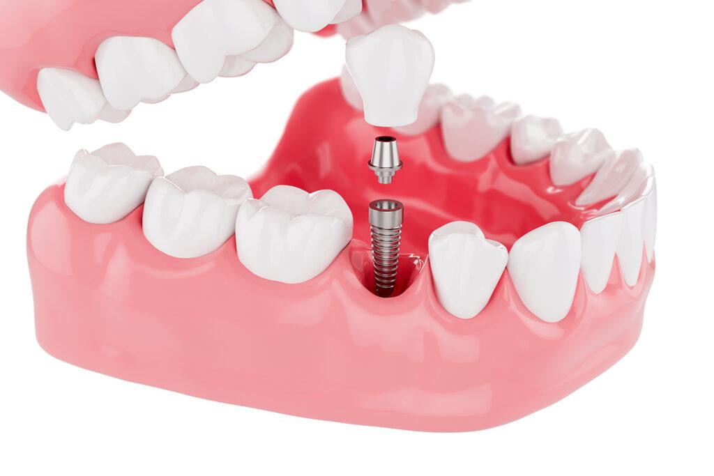 คลินิก-ทันตกรรม-ดิไอวรี่-รากฟันเทียม
