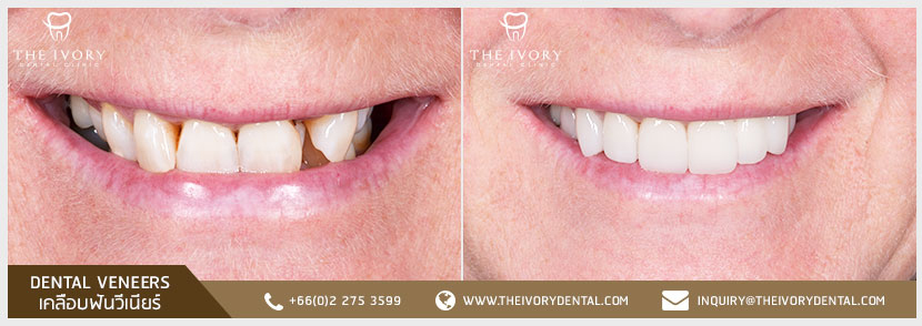 The-Ivory-Dental-Clinic-Veneers