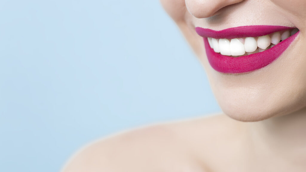 คลินิก-ทันตกรรม-ดิไอวรี่-วีเนียร์-แปะฟันขาว-Smile